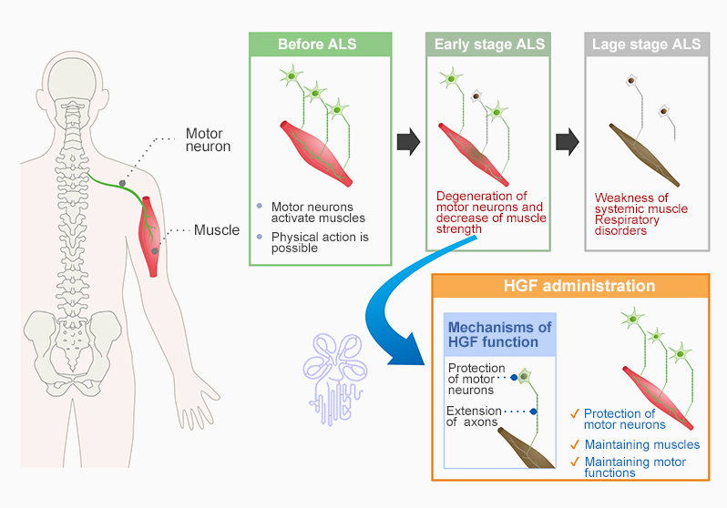 Onset mechanism of ALS and therapeutic effect by HGF