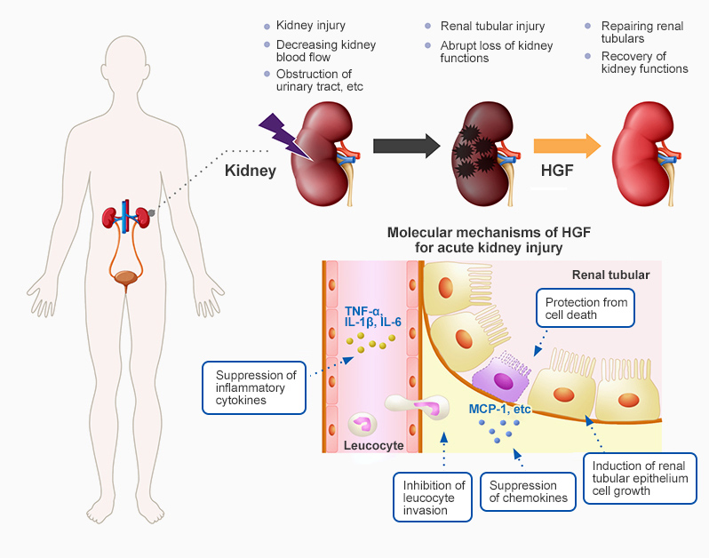 Onset of Acute Kidney Injury and Mechanism of Action of HGF